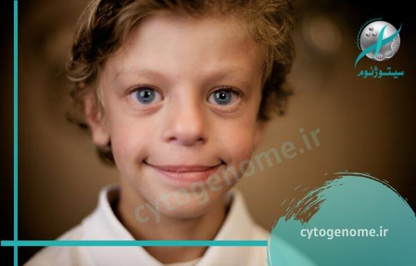 سندرم های تاثیر گذار بر شنوایی اطفال