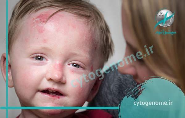 علائم بیماری بال پروانه ای ( EB)
