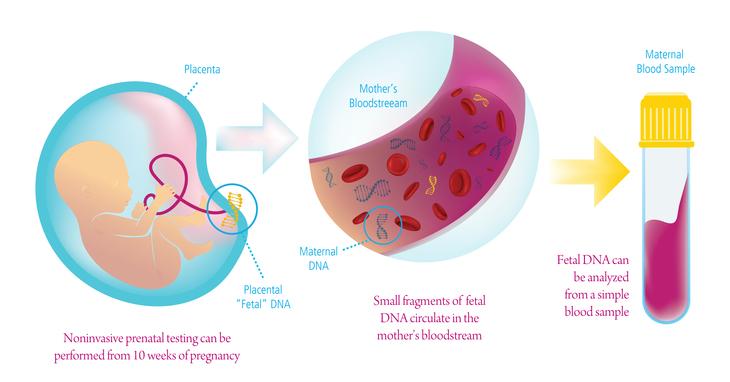 آزمایش NIPT در بارداری