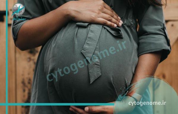 لوپوس در بارداری