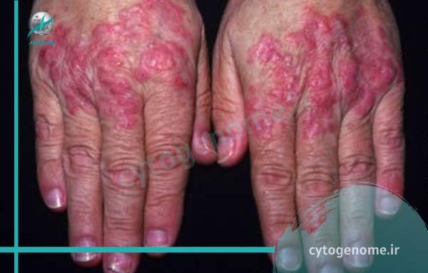 بیماری بافت همبند ژنتیکی یا خودایمنی