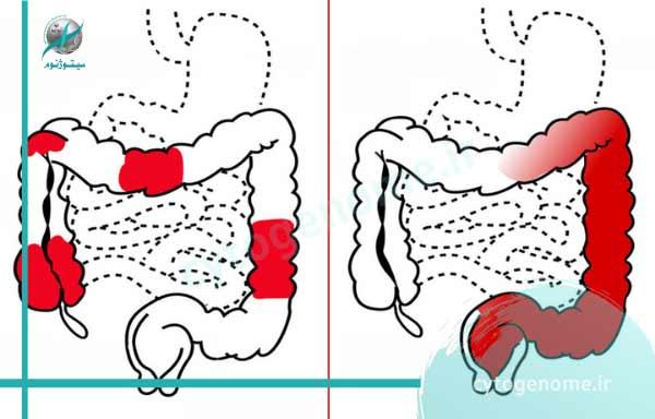 بیماری کولیت اولسراتیو ارثی