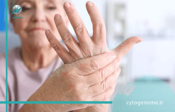 درمان بیماری های بافت همبند