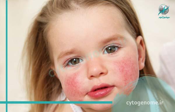 حساسیت پوستی در کودکان