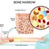 اختلالات مغز استخوان