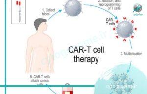درمان سرطان سلول T