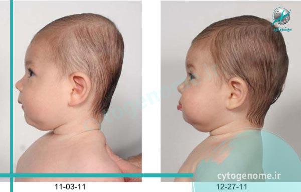 سندروم پلاژیوسفالی یا بدشکلی سر در نوزادان (سر صاف در نوزادان)