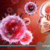 مننژیت باکتریایی