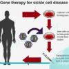 ژن درمانی در آنمی سلول داسی شکل