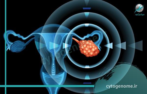ژن درمانی سرطان تخمدان